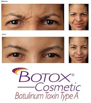 Botox-BeforeAfter-SanAntonioFillers