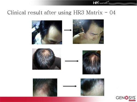 HR3-rezultaty0