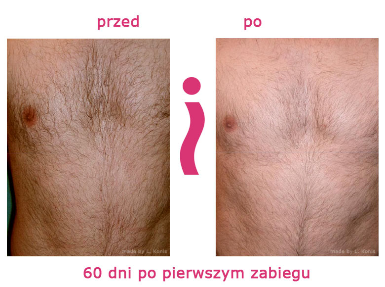 przed-i-po-klatka