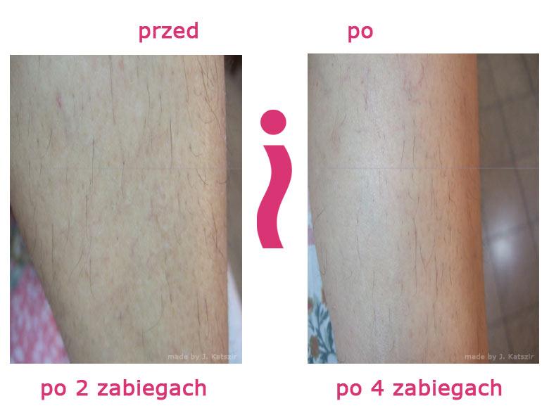 przed-i-po-nogi