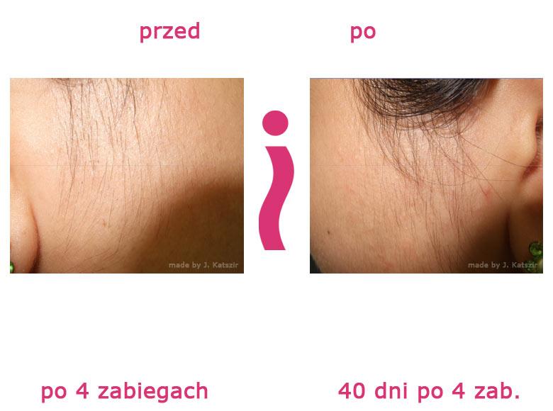 przed-i-po-policzek2